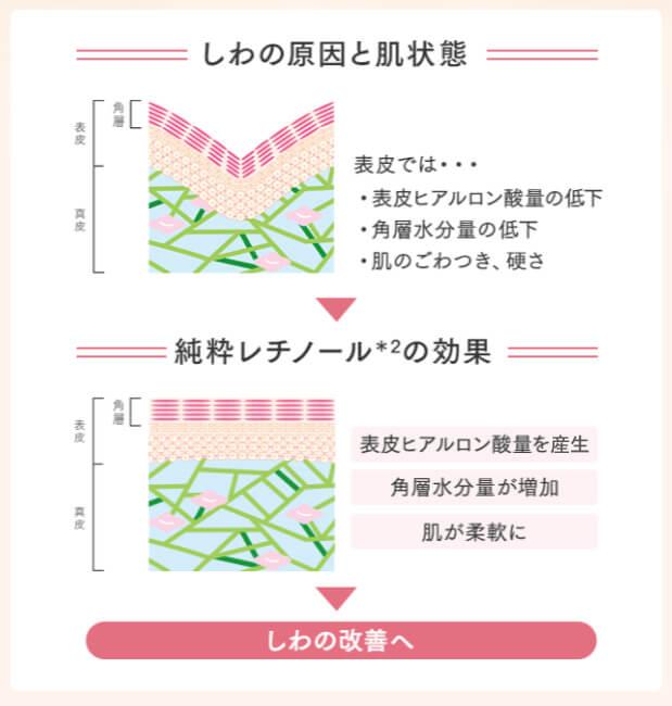 しわの原因と肌状態/純粋レチノールの効果
